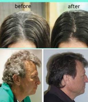 Dr GreyHalt say How to solve Grey Hair Cure Gray Hair